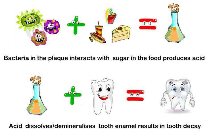17 Best Images About Cavities On Pinterest Wisdom