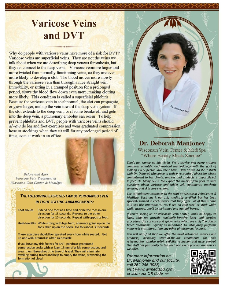 Can I Exercise With a Deep Vein Thrombosis?