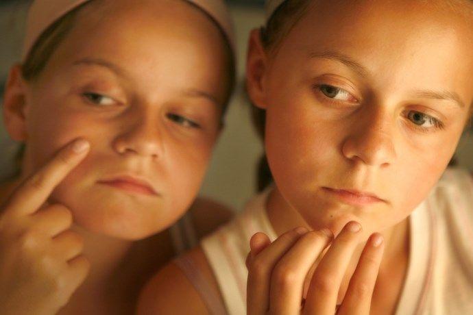 Heeft Antwerpse universiteit efficiënte therapie tegen acne?... (Antwerpen) - Het Nieuwsblad: http://www.nieuwsblad.be/cnt/dmf20161122_02585678
