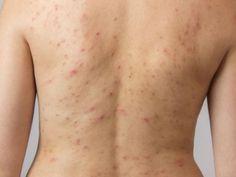 El acné en la espalda es bastante común (incluso si no tienes ni un granito en la cara), pero afortunadamente existen distintas maneras para deshacerse de él.Crema antiacnéBusca una crema que no tenga aceite y que contenga ingredientes como: ácido salicílico, peróxido de benzolio, solución de azufre o crema de retinol.MascarillaExfoliar la piel sirve para prevenir las espinillas, prueba una mascarilla de azúcar y avena.