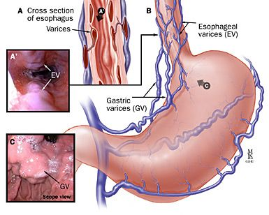 VERY cool link on Portal HTN - Varices are varicose veins, visible on endoscopy, an upper GI series or other imaging studies, that occur in the esophagus or stomach as a result of portal hypertension