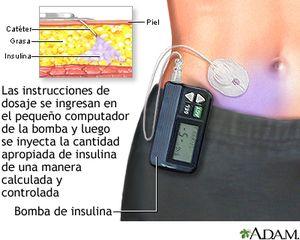 Tratamiento para el control de la diabetes tipo 1: Bomba de insulina
