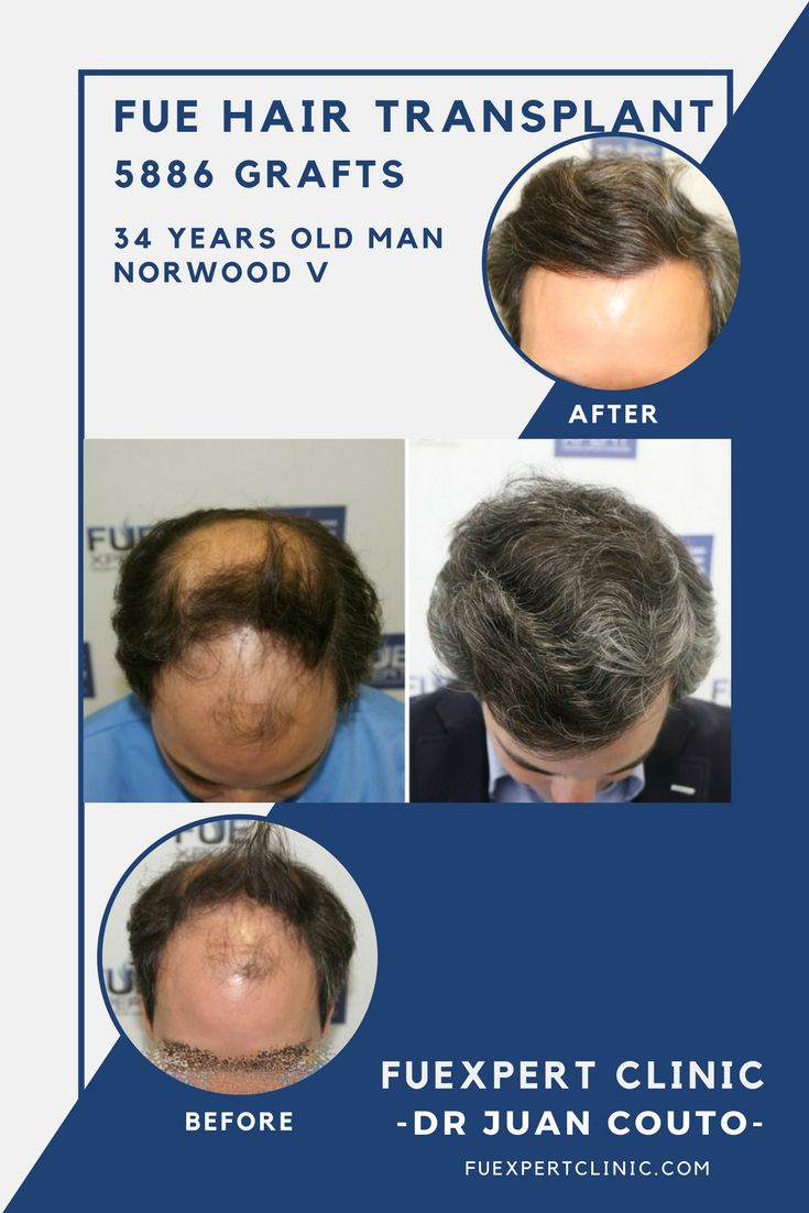 5886 Grafts - FUE Hair Transplant at FUExpert Clinic by Dr Juan Couto - Madrid, Spain