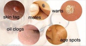 Natural Ways to Put an End to Moles, Warts, Blackheads, Skin Tags and Age Spots - Mr. Healthy Alternative