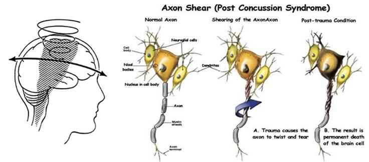 diffuse axonal injury | Diffuse Axonal Injury | Traumatic ...