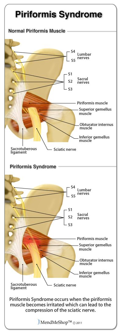 Piriformis Syndrome is inflammation in the piriformis muscle which causes irritation and compression of the sciatic nerve.
