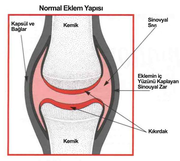 Romatoid artrit, küçük eklemlerin öncelikle tutulduğu, kronik  seyir gösteren ve tuttuğu eklemde hasara neden olan; bir çok organ ve sistemi de tutabilen otoimmün bir iltihabi eklem hastalığıdır.