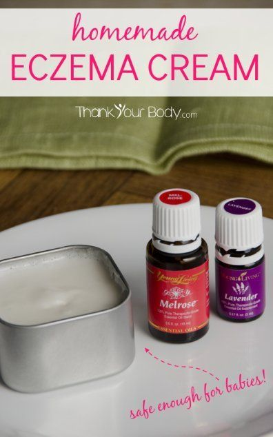 This homemade eczema cream is simple to make, effective, and safe enough for babies. Definitely save this for later!