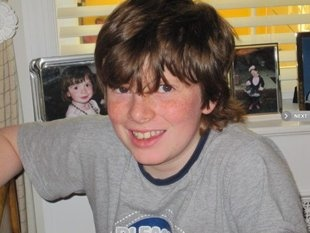 Every parent needs to read this!! Rory Staunton, who died of sepsis in April, 2012.