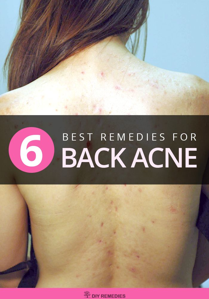 Home Remedies for Back Acne:  Here are some effective home remedies that help to get rid of back acne naturally. All you need to do is to follow them regularly till you get complete relief from the bacne. #Bacne #Acne #DIYRemedies #NaturalRemedies