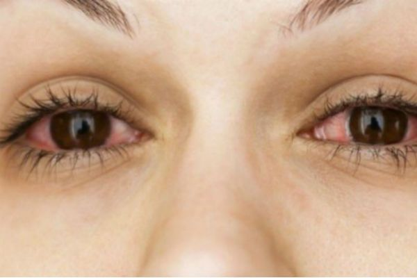 Do You Often Have Red Eyes: Here's What Disease Indicates Redness In The Eye