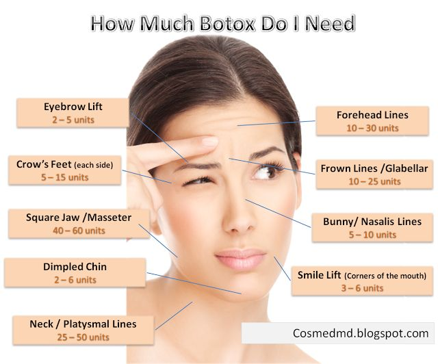 The real answer can't truly be determined until you visit your med spa or dermatologist who is trained and certified to provide Botox treatments.