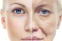 Exercícios faciais contra flacidez