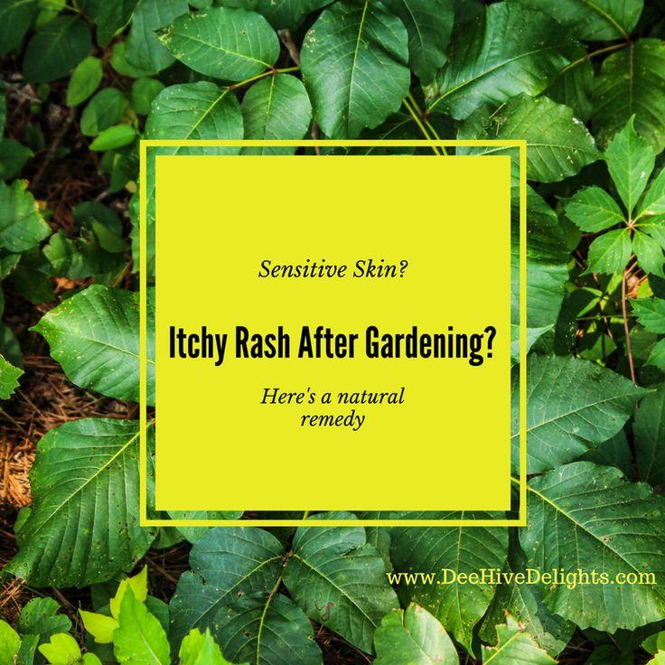 itchy skin rash after gardening
