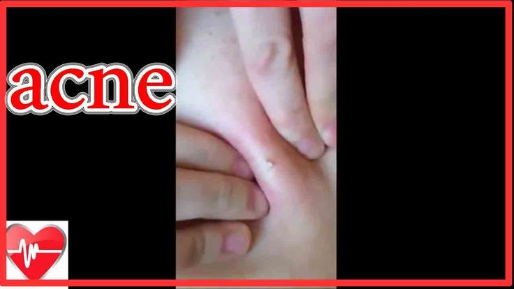 "Cysts squeezing. Cyst removal at home ""dr. Pimple"""