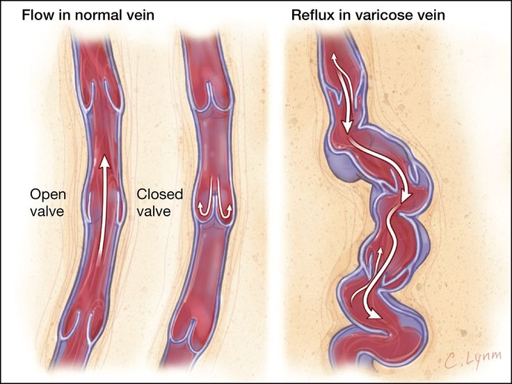 400 best vascular images on pinterest | ultrasound, anatomy and, Cephalic Vein