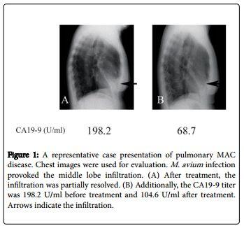 Carbohydrate Antigen 19-9 (CA19-9) Represents the Disease Activity of Nontuberculous Mycobacteria