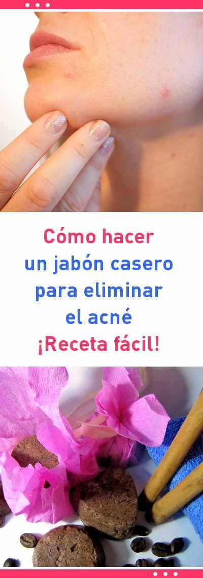 Cómo hacer un jabón casero para eliminar el acné. ¡Receta fácil! #acne #jabones #eliminar #piel #rostro #casero #diy #canela