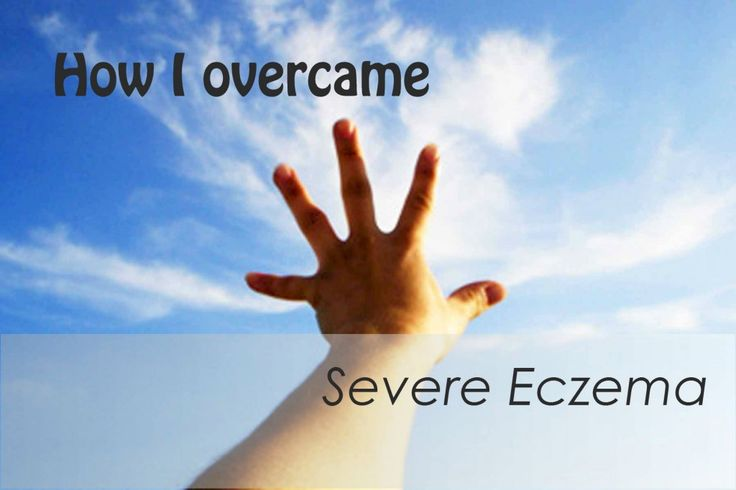 how i overcame severe eczema when doctors said there was no cure - read the full blog post at http://www.primephysiquenutrition.com