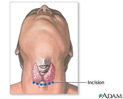 Thyroid Surgery Incision