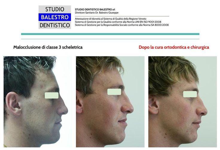 Casi clinici ortodontici Chirurgia Ortognatica/Classe 3 scheletrica http://www.studiodentisticobalestro.com/2016/06/chirurgia-ortognatica-classe-3_8.html
