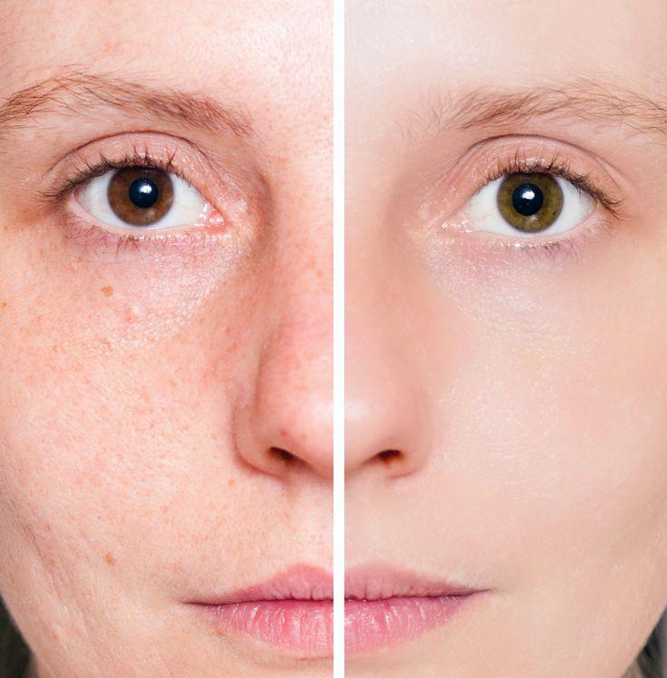 """Pores : la chaleur élimine """"l'huile"""" des pores et permet de les rétrécir, utilisez des serviettes chaudes pour votre visage. Démaquillez-vous, et exfolier votre visage 1fois / semaine. Les agrumes contribuent aussi à les resserrer, frotter 1 agrume coupé en 2 sur le visage. Le masque maison : battre 1 blanc d'œuf en neige, 1càc jus de citron, appliqué sur le visage, patienter  30min, rincer à l'eau tiède, puis hydrater. Je vous conseille la Lotion Gemology ainsi que le Brumisateur Laroche…"""