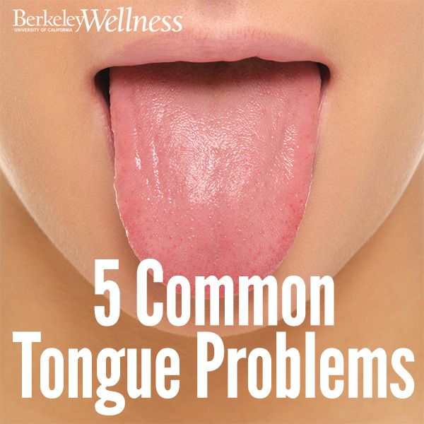 Inspirational Quotes On Pinterest: While Most #tongue Problems Are Minor, Others May Be