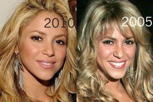 Shakira Plastic Surgery Nose Jobs