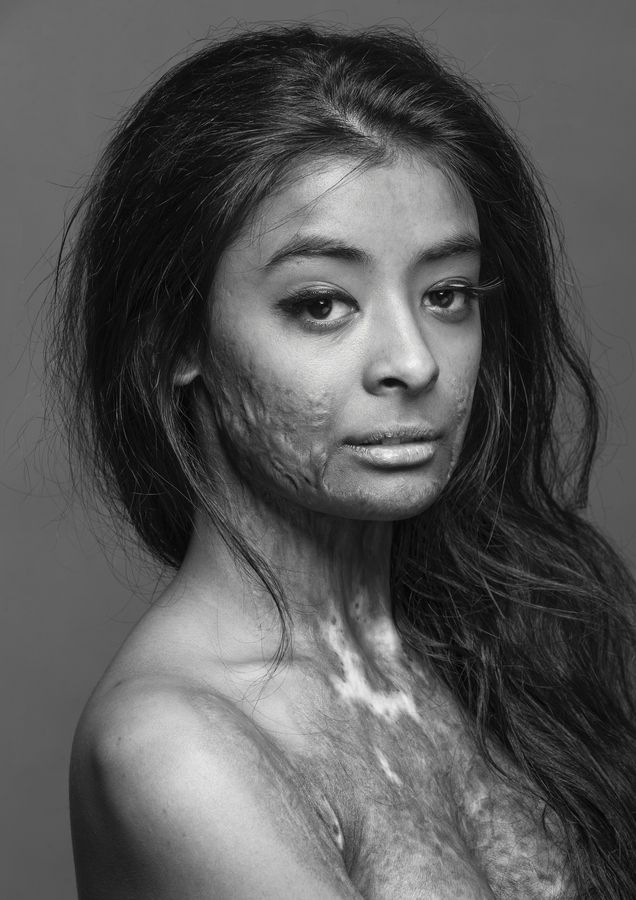 "This beautiful model, a burn survivor, did this photo shoot to, in her own words, ""prove that scars do not change a person, they make that person who they become."" What a gorgeous woman. BREATHLESS and indeed still BEAUTIFUL <3"
