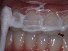 Manželka mého zubaře mě naučila odstranit si zubní kámen a vybělit si zuby jen za 4 minuty
