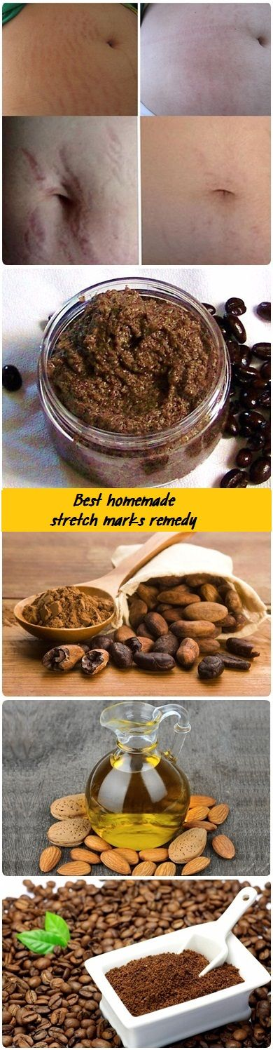 Whether you have stretch marks on arms, abdomen, breasts, thighs or buttocks know that you struggle to get rid of them. In fact, stretch marks occur when there is a weight fluctuation, especially when you gain weight suddenly. Stretch marks can be described that the lines that appear on the skin surface, the color darker …