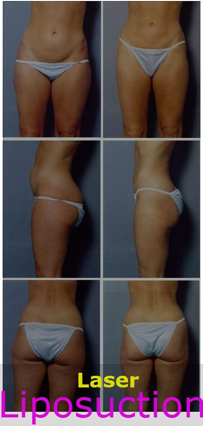 Clinically proven pros and cons of Laser Liposuction :-  The pros and cons of the laser liposuction do not vary much when compared to the conventional liposuction methods. But the difference has to be borne in mind when one plans to have a laser liposuction in the future.
