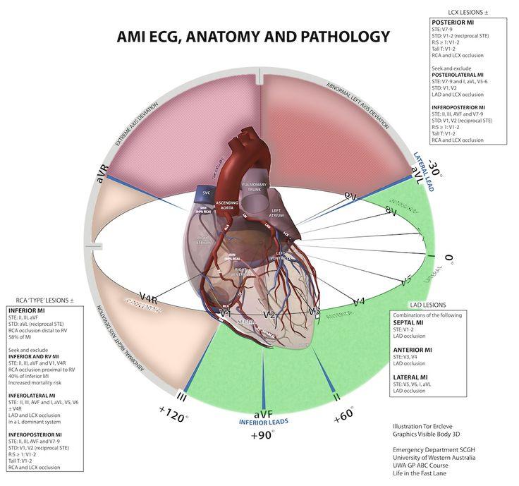 The ECG Mastery program   Medmastery