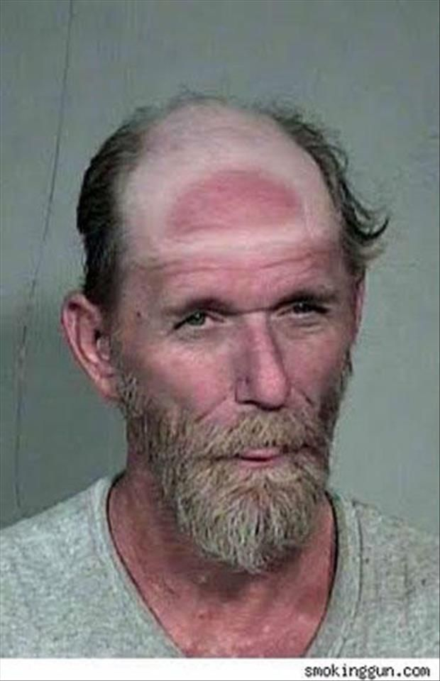 Dump A Day Funny Sunburn Pictures - 24 Pics