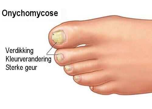 Le microorganisme végétal des ongles dans lhoméopathie