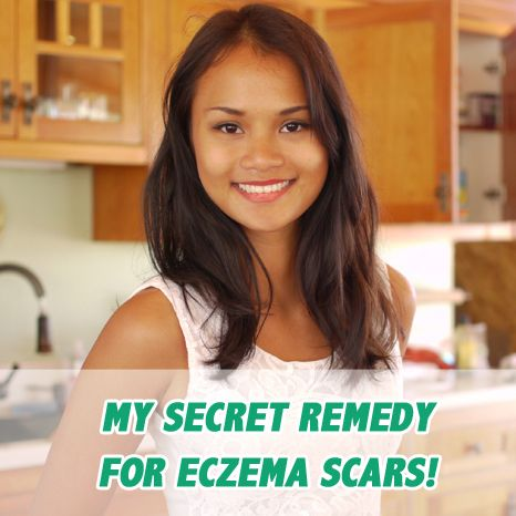 I used to have really bad eczema marks on my body,…