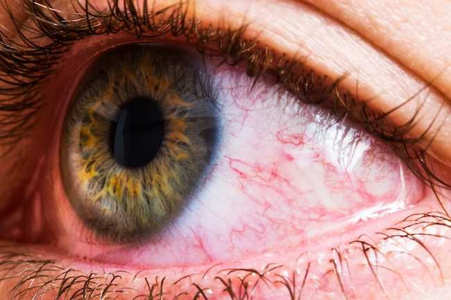 Slideshow What Your Eye Symptoms May Mean In 2020 Bloodshot