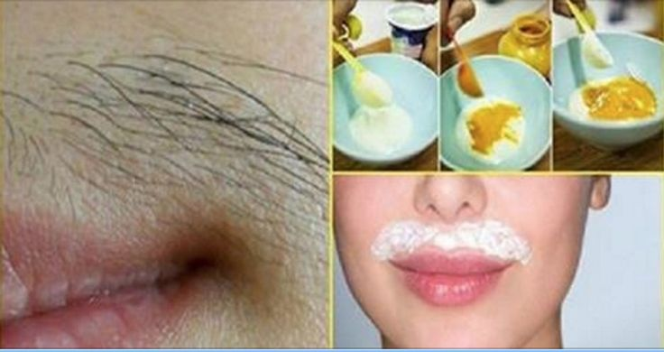 Women In The Middle East Are Using This For Centuries: Permanent Hair Removal From The Face! (Recipe