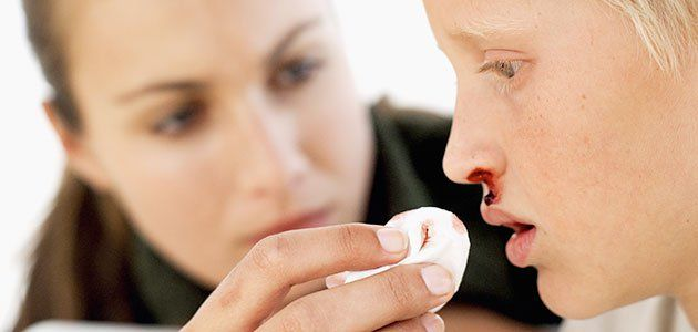 Qué hacer cuando al niño le sangra la nariz