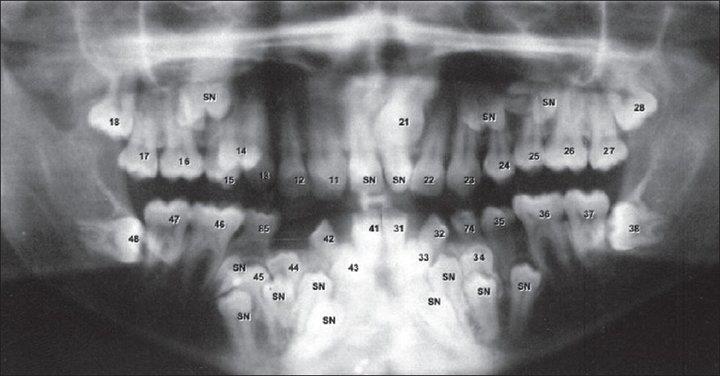 Dental anomalies - Hyperdontia
