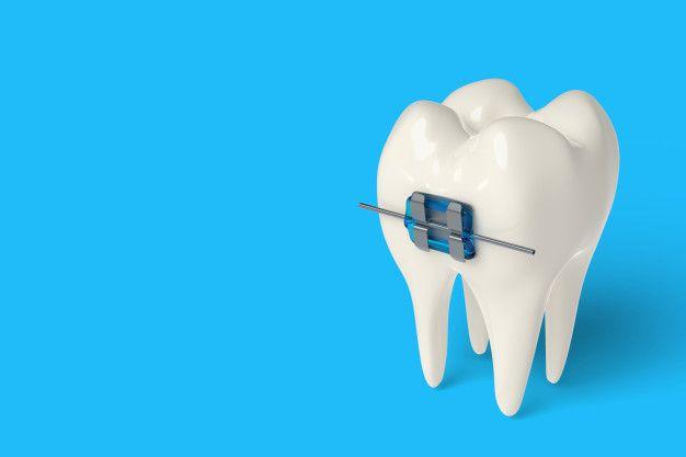 3d Render Tooth With Ceramic And Metal Braces In Gums Ceramics Metal Braces