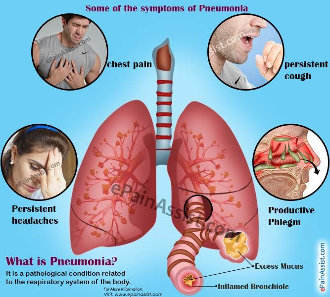 does pneumonia causes weight loss