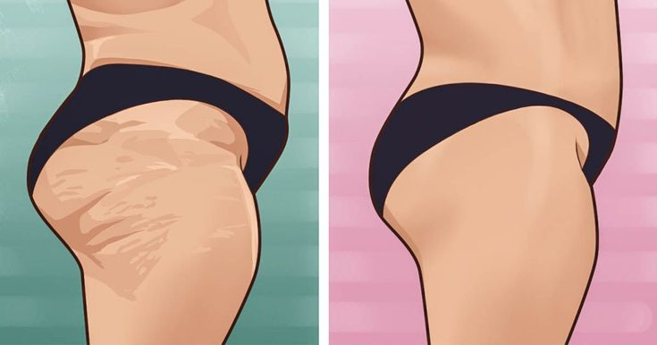 Cellulite is something that many of us wish could magically disappear. However, there's a little more to it than just that. As an article from CNNindicates, there is no such thing as a quick-fix wh…
