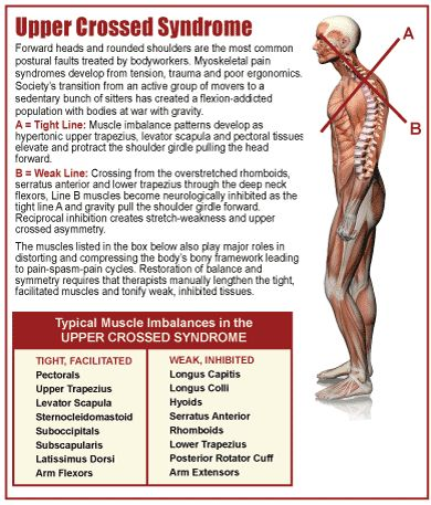Upper-Crossed Syndrome (UCS) is also referred to as proximal or shoulder girdle crossed syndrome. In UCS, tightness of the upper trapezius and levator scapula on the dorsal side crosses with tightness of the pectoralis major and minor. Weakness of the deep cervical flexors ventrally crosses with weakness of the middle and lower trapezius. T See more at: http://www.muscleimbalancesyndromes.com/janda-syndromes/upper-crossed-syndrome/#sthash.KpQPinec.dpuf