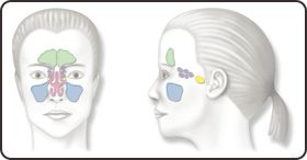 The shape of your nasal cavity could be the cause of chronic sinusitis. The nasal septum is the wall dividing the nasal cavity into halves; it is composed of a central supporting skeleton covered on each side by mucous membrane.