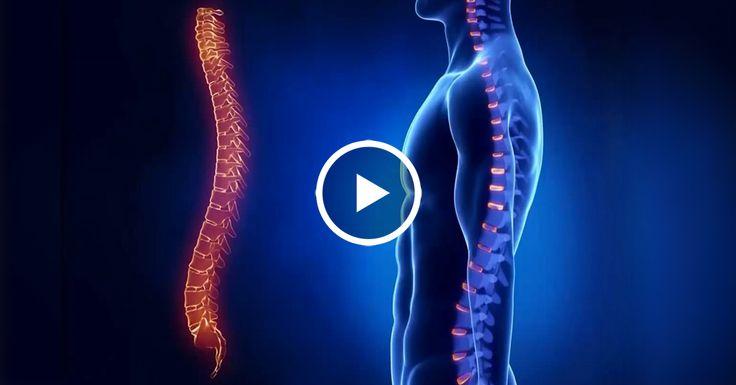 Боль в Спине? Онемение Рук и Ног? Лечение Грыжи Шморля, Гимнастика и Упражнения!