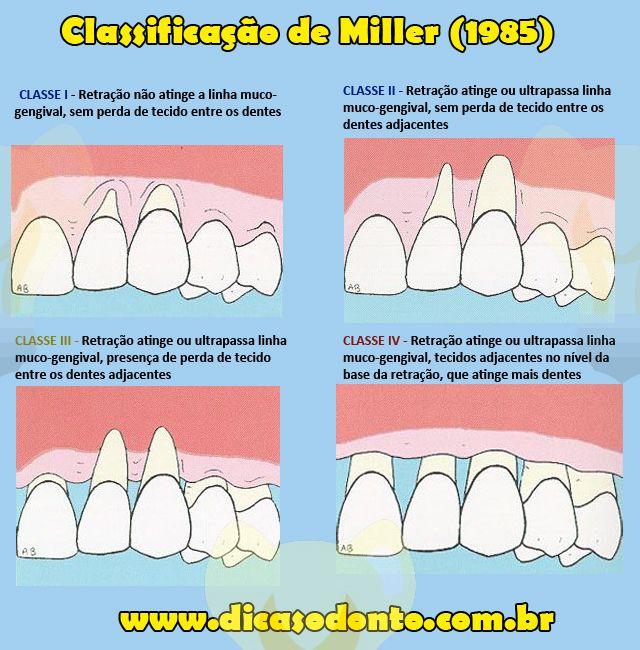 Classificação de Miller Retração de Gengiva Dicas Odonto