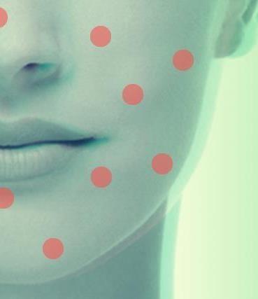 Holistically cure acne