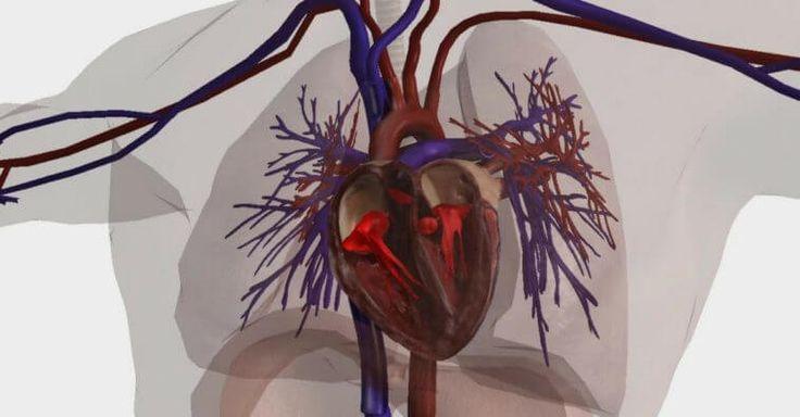 14 Sintomas Que Indicam a Má Circulação Sanguínea Pessoas de Todas as Idades Podem Sofrer Com o Problema: 1. Feridas nas pernas; 2. Cianose; 3. Unhas e cabelos fracos; 4. Pés e mãos inchados; 5. Varizes; 6. Fadiga; 7. Disfunção erétil; 8. Digestão lenta ;9. Sistema imunológico deficiente; 10. Pés e mãos mais frios; 11. Queda de apetite; 12. Angina; 13. Sensação de dormência; 14. Confusão mental.