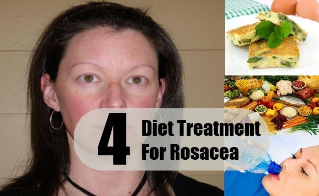 Diet Treatment For Rosacea